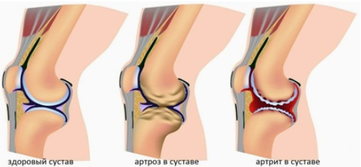 Arthrosis and arthritis
